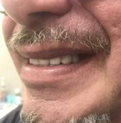 Single-tooth-implant-replacement-After-Image