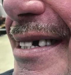 Single-tooth-implant-replacement-Before-Image